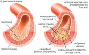 Закупорка артерий атеросклерозной бляшкой