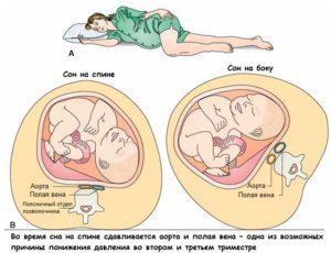 Одна из возможных причин понижения давления при беременности