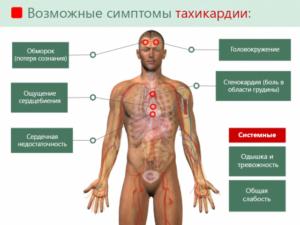 Возможные симптомы тахикардии