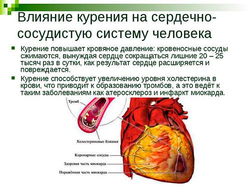 Влияние курения и алкоголя на сердце