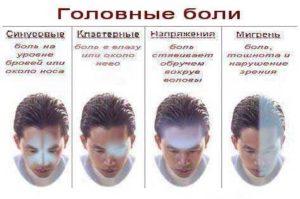 Какие бывают головные боли?