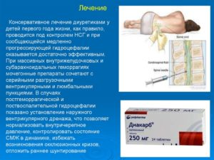 Лечение гипертензионно-гидроцефального синдрома
