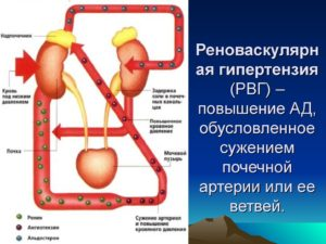 Понятие реноваскулярной гипертензии